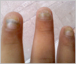 Fungal Nails (Before)